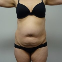 Manhattan abdominoplasty before 7